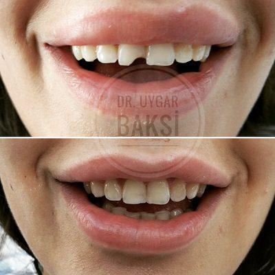 kırık diş tedavisi adana