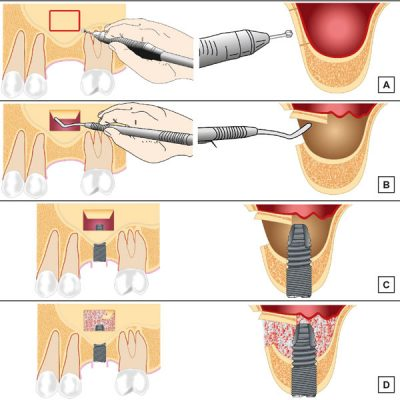 implant adana