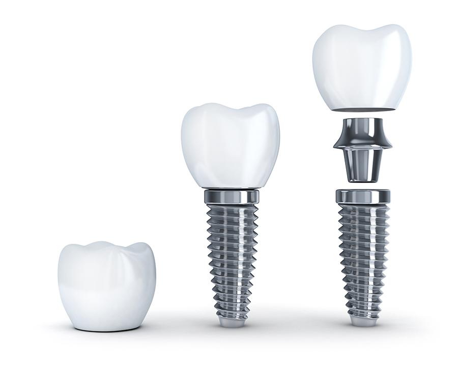 adana implant