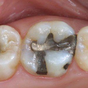 diş dolgusu