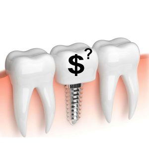 adana implant fiyatları