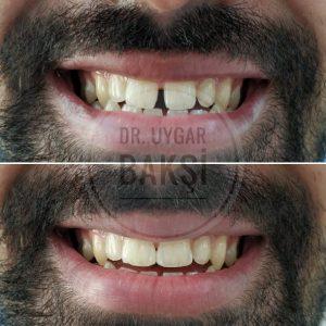 adana ayrık diş tedavisi