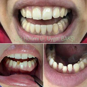 lamina estetik diş